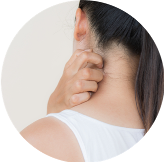 eczema allergy