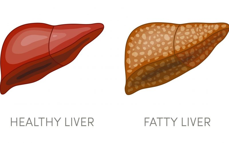 How can my diet help prevent or treat NASH or NAFLD?